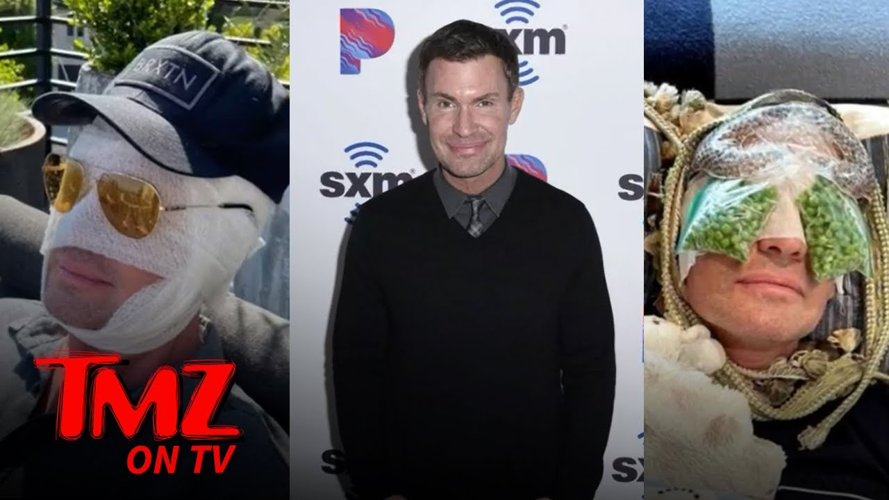 'Flipping Out' Star Jeff Lewis Says Eyelid Surgery Recovery is Going Well | TMZ TV